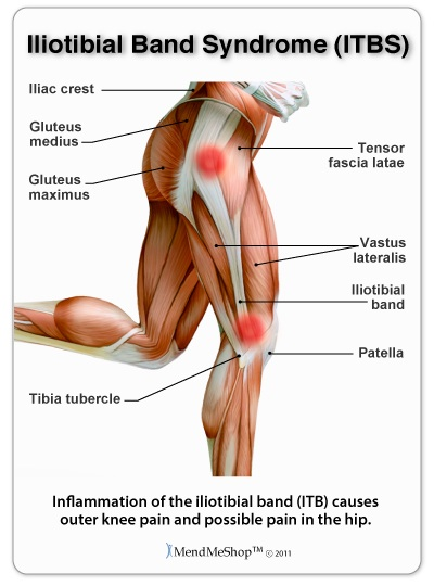 iliotibial band syndrome (itbs) - fleet feet hickory, Cephalic Vein